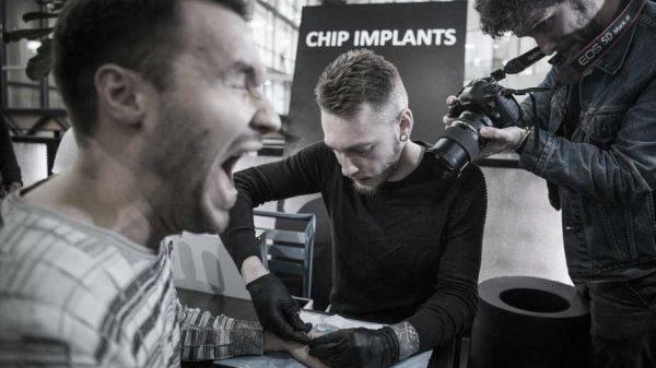 implante chip